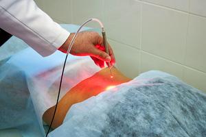 лечение рака лазером